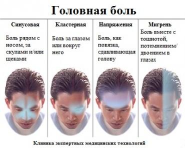 Гид по головной боли